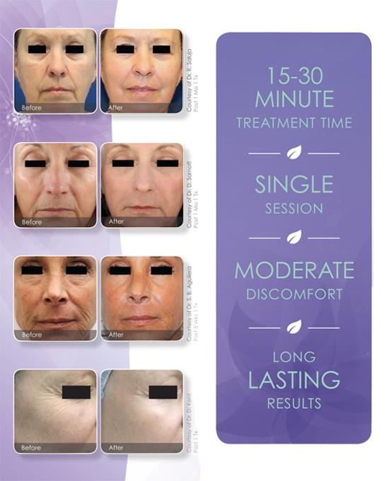 SkinResurfacing-PatientPamphlet-final-2