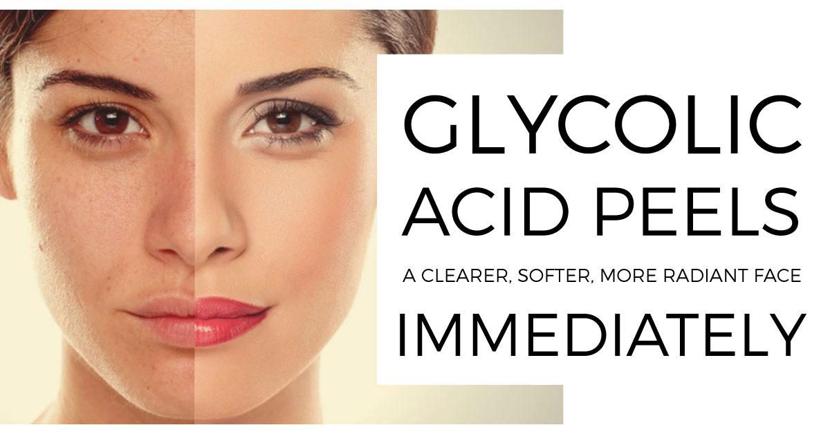 GLYCOLIC-ACID-PEELS